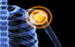 81 3 300x188 - علت به وجود آمدن صدا در مفاصل چیست؟