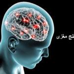 hhe2574 brain paralysis 150x150 - ۲ اکتبر؛ روز جهانی فلج مغری