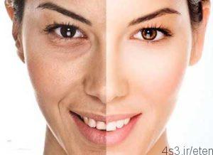 پوست 300x218 - روشی برای جلوگیری از چروک پوست