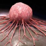 n00267004 b 150x150 - سرطان دومین علت مرگ ایرانیها