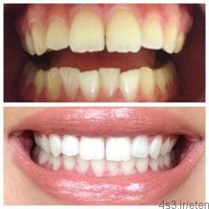 vss 300x300 - آشنایی با روش های سفید کردن دندان