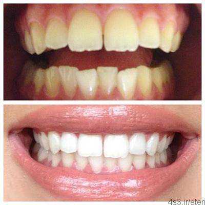 vss - آشنایی با روش های سفید کردن دندان