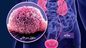 علت، علائم، تشخیص و درمان سرطان مثانه سایت 4s3.ir