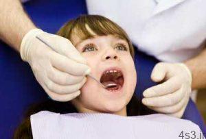 فیشورسیلانت و فواید آن برای دندان دائمی سایت 4s3.ir