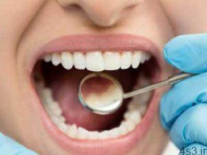 6 راه کارآمد برای از بین بردن پلاک دندان به طور طبیعی سایت 4s3.ir