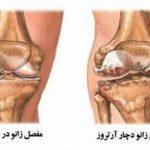 درمان آرتروز زانو با ورزش + تصاویر سایت 4s3.ir