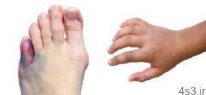 درمان شکستگی انگشتان پا سایت 4s3.ir