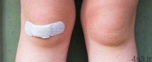 خبرهای پزشکی : ابداع چسب زخم هوشمند با قابلیت شناسایی عفونتهای باکتریایی سایت 4s3.ir