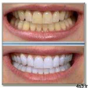 اگر دندانتان را جرمگیری نکنید.. سایت 4s3.ir