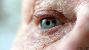 تشخیص آلزایمر با معاینه ساده چشم سایت 4s3.ir