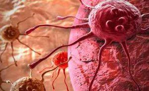 توصیه هایی برای پیشگیری از سرطان سایت 4s3.ir