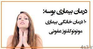 درمان و پیشگیری از بیماری بوسیدن سایت 4s3.ir