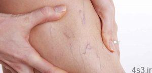 روشهای پیشگیری و درمان واریس سایت 4s3.ir