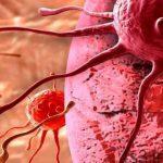 خبرهای پزشکی : سرطان «مری» پیشبینی میشود سایت 4s3.ir