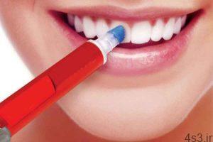 سفید کننده دندان سایت 4s3.ir