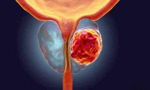 علائم و نشانه های سرطان پروستات سایت 4s3.ir