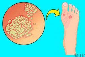 علامتهایی در پاها که نشان دهنده مشکلات داخلی بدن هستند سایت 4s3.ir