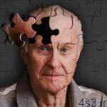 علل و راههای پیشگیری از آلزایمر سایت 4s3.ir