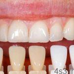 مراحل انجام کار دندانپزشک زیبایی چیست؟ سایت 4s3.ir