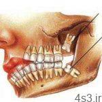مراقب عوارض دندان عقل باشيد سایت 4s3.ir