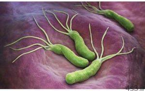 خبرهای پزشکی : میکروب معده بیماری عفونی، قابل انتقال به دیگران سایت 4s3.ir