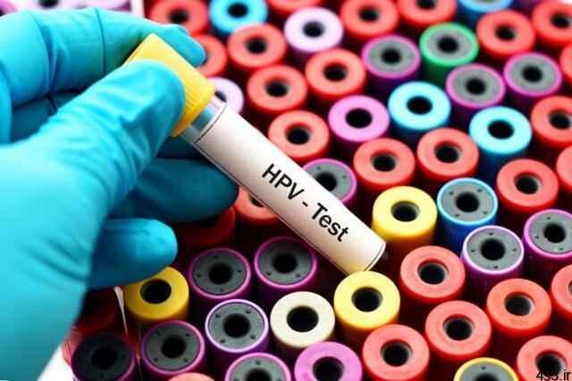 خبرهای پزشکی : نرخ ۵ تا ۹ درصدی ابتلا به HPV در کشور/تاثیر آلودگی هوا در فوت زودتر شهروندان سایت 4s3.ir