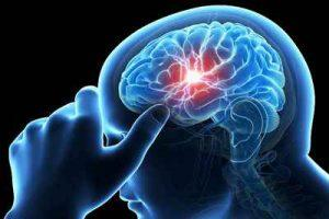 نشانههای هشدار دهنده سکته مغزی سایت 4s3.ir