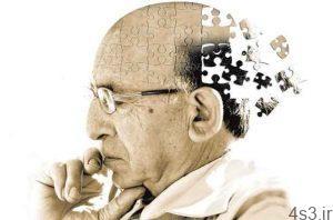 خبرهای پزشکی : نور چشمک زن به مقابله با بیماری آلزایمر کمک می کند سایت 4s3.ir