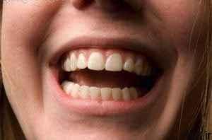 پیشگیری از مشکلات دهانی دندانی سایت 4s3.ir