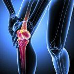 چگونه از پوکی استخوان جلوگیری کنیم ؟ سایت 4s3.ir