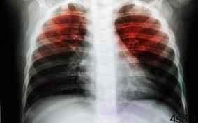 خبرهای پزشکی : کشف راهی نوین برای مبارزه با بیماری سل سایت 4s3.ir