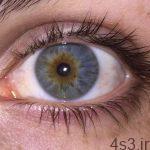 خبرهای پزشکی : کشف پروتئینی که با نابینایی مرتبط است سایت 4s3.ir