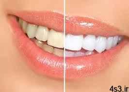 10 علت بدرنگی دندانها و راههای جلوگیری از آنها سایت 4s3.ir