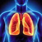 10 نکته برای پیشگیری از سرطان ریه سایت 4s3.ir