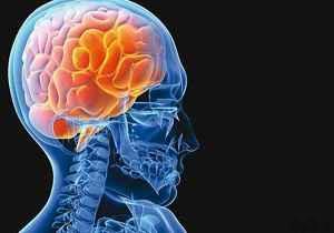 5 راه ساده برای پیشگیری از سکته مغزی سایت 4s3.ir