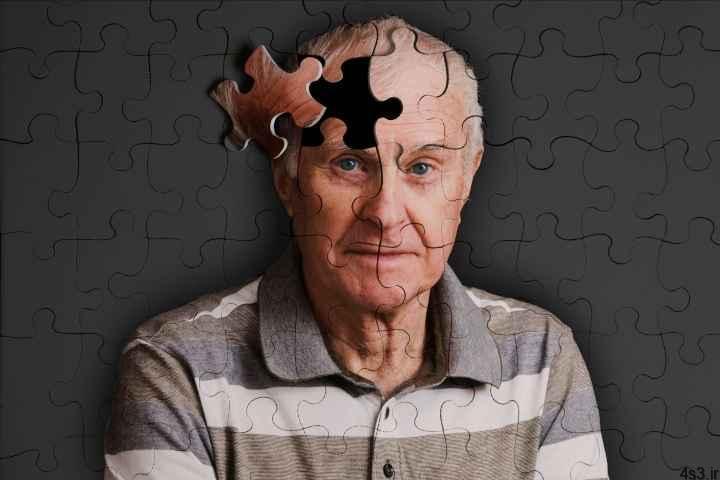 5 روش برای پیشگیری از ابتلاء به آلزایمر سایت 4s3.ir