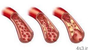 نقش گردو در کاهش چربی های خون سایت 4s3.ir