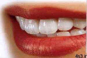 ۷ توصیه غذایی برای داشتن دندان های سالم سایت 4s3.ir