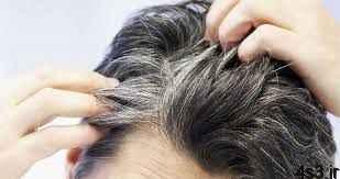 آیا استرس موها را سفید میکند؟ سایت 4s3.ir