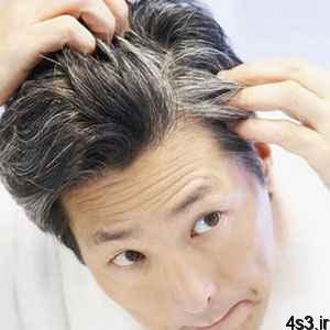 استرس ، مو را خاکستری میکند سایت 4s3.ir