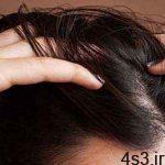 با 6 گام موهایتان را دوباره سبز کنید سایت 4s3.ir