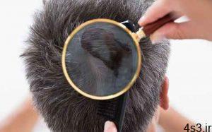 ترمیم مو چیست؟ سایت 4s3.ir