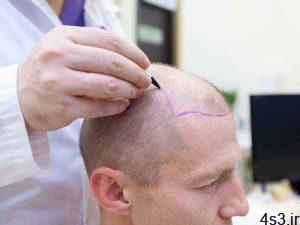 تفاوت کاشت مو به روش های مختلف سایت 4s3.ir