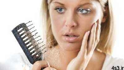 توقف ریزش مو با چند فرمول طبیعی!! سایت 4s3.ir