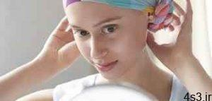 درمان ریزش مو در طول شیمی درمانی سایت 4s3.ir