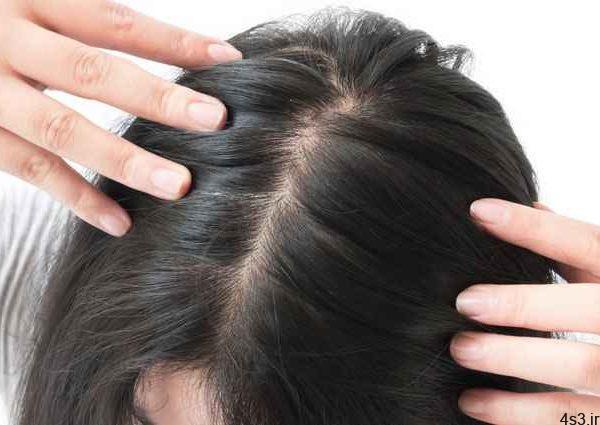 راه های درمان خارش پوست سر سایت 4s3.ir