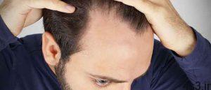 ریزش موی مردانه سایت 4s3.ir
