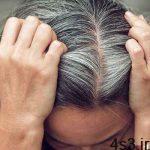سفید شدن مو در جوانی سایت 4s3.ir