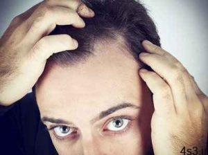 علت و درمان ریزش مو در مردان سایت 4s3.ir