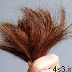 مو خوره چگونه به وجود می آید؟ سایت 4s3.ir